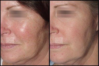 Plasma Skin Resurfacing Gallery - Patient 4727309 - Image 2