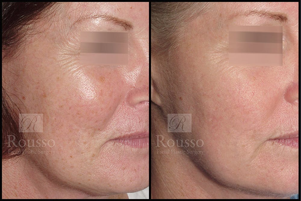 Plasma Skin Resurfacing Gallery - Patient 4727309 - Image 1