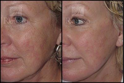 Plasma Skin Resurfacing Gallery - Patient 4727310 - Image 2
