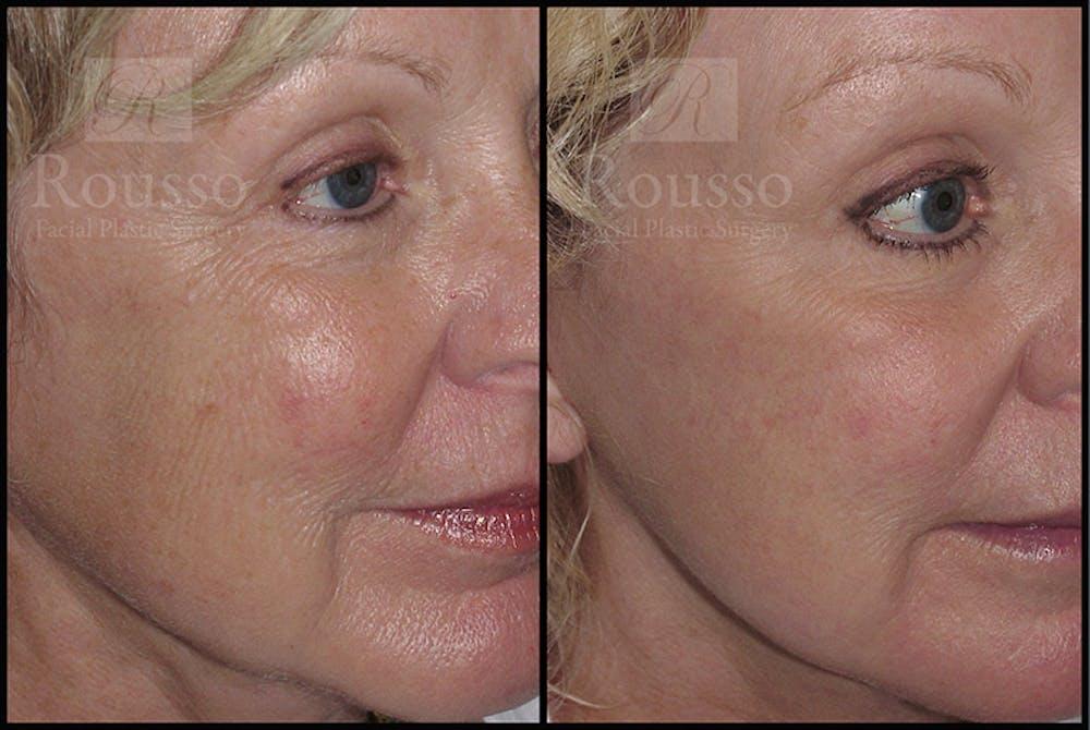 Plasma Skin Resurfacing Gallery - Patient 4727310 - Image 1