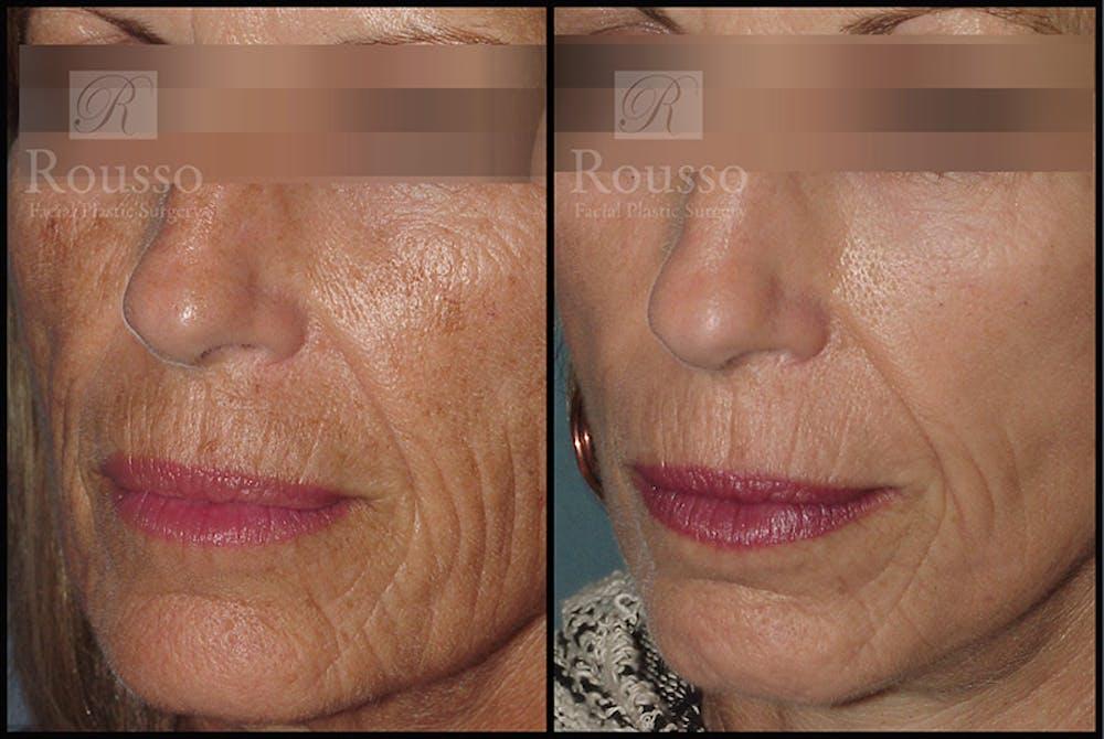 Plasma Skin Resurfacing Gallery - Patient 4727311 - Image 1