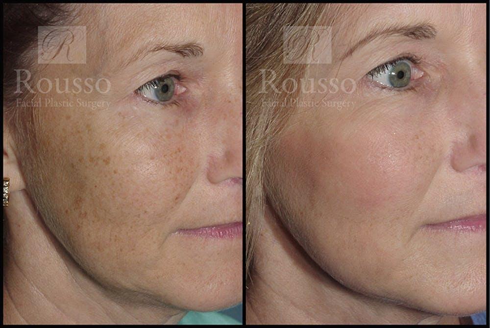 Plasma Skin Resurfacing Gallery - Patient 4727312 - Image 1