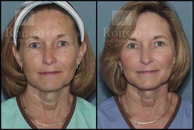 Plasma Skin Resurfacing Gallery - Patient 4727312 - Image 2