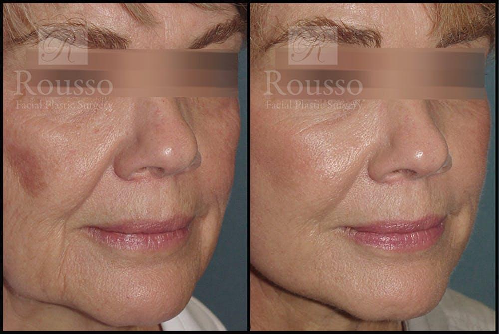 Plasma Skin Resurfacing Gallery - Patient 4727313 - Image 1