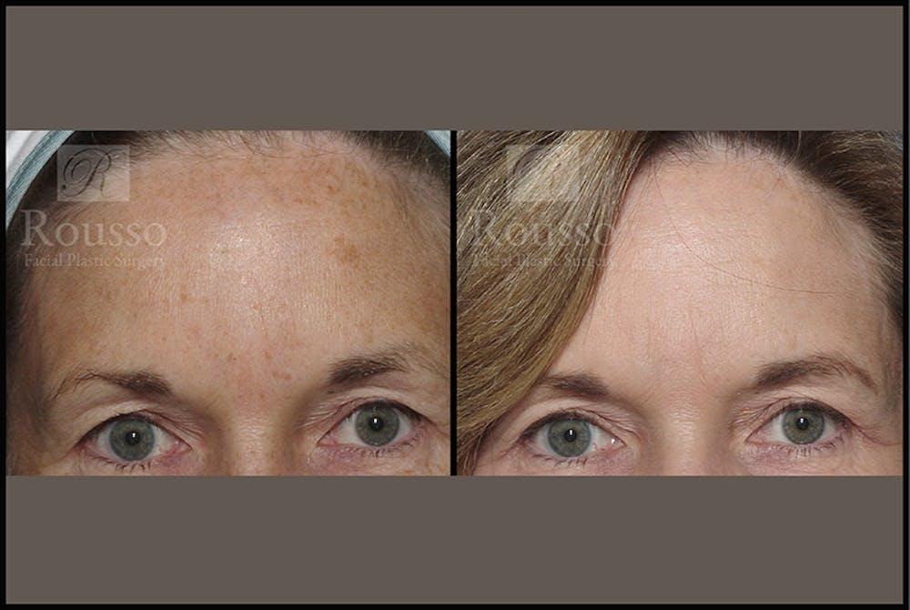 Plasma Skin Resurfacing Gallery - Patient 4727312 - Image 3