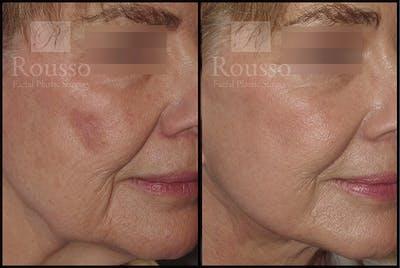 Plasma Skin Resurfacing Gallery - Patient 4727313 - Image 2