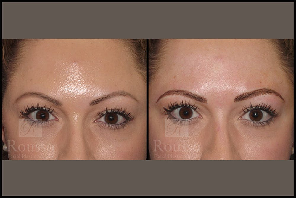 Microblading Gallery - Patient 4890746 - Image 1