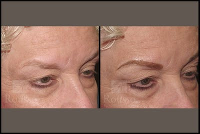 Microblading Gallery - Patient 4890747 - Image 1