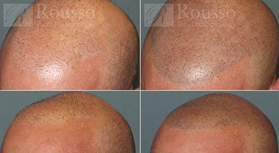 Scalp MicroPigmentation Gallery - Patient 5334965 - Image 1