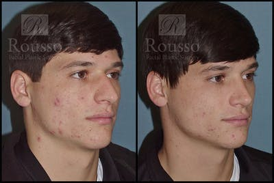 Rhinoplasty Gallery - Patient 1993322 - Image 1