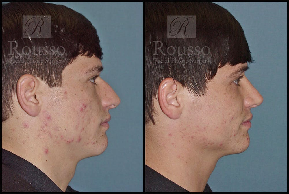 Rhinoplasty Gallery - Patient 1993322 - Image 3