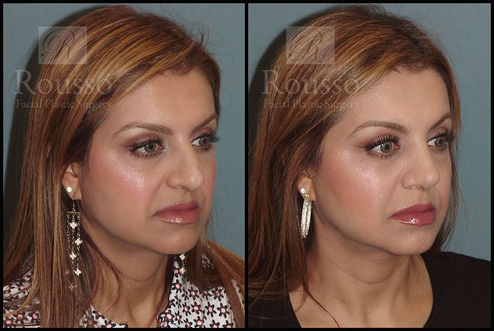 Rhinoplasty Gallery - Patient 5776413 - Image 1