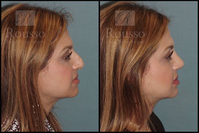 Rhinoplasty Gallery - Patient 5776413 - Image 2