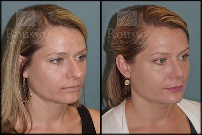 Rhinoplasty Gallery - Patient 5776414 - Image 1