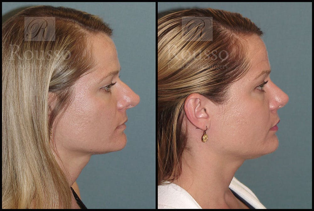 Rhinoplasty Gallery - Patient 5776414 - Image 2
