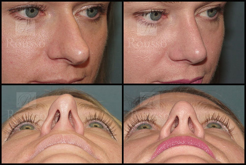 Rhinoplasty Gallery - Patient 5776414 - Image 3