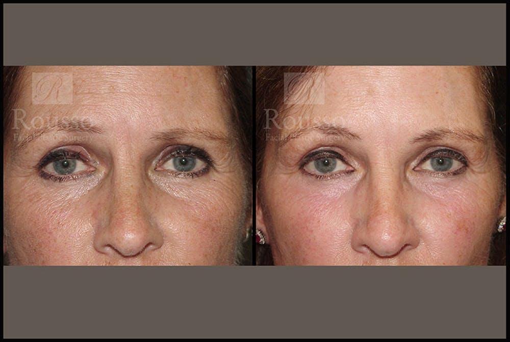 Plasma Skin Resurfacing Gallery - Patient 5818918 - Image 3