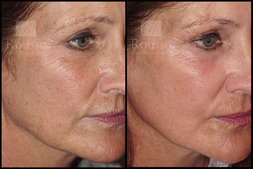 Plasma Skin Resurfacing Gallery - Patient 5818918 - Image 1