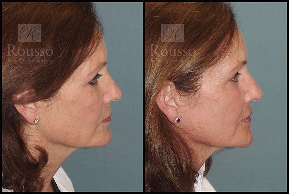 Plasma Skin Resurfacing Gallery - Patient 5818918 - Image 2