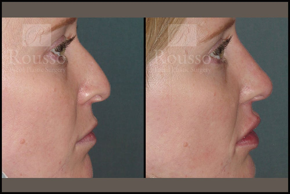 Non-Surgical Rhinoplasty Gallery - Patient 6363742 - Image 1