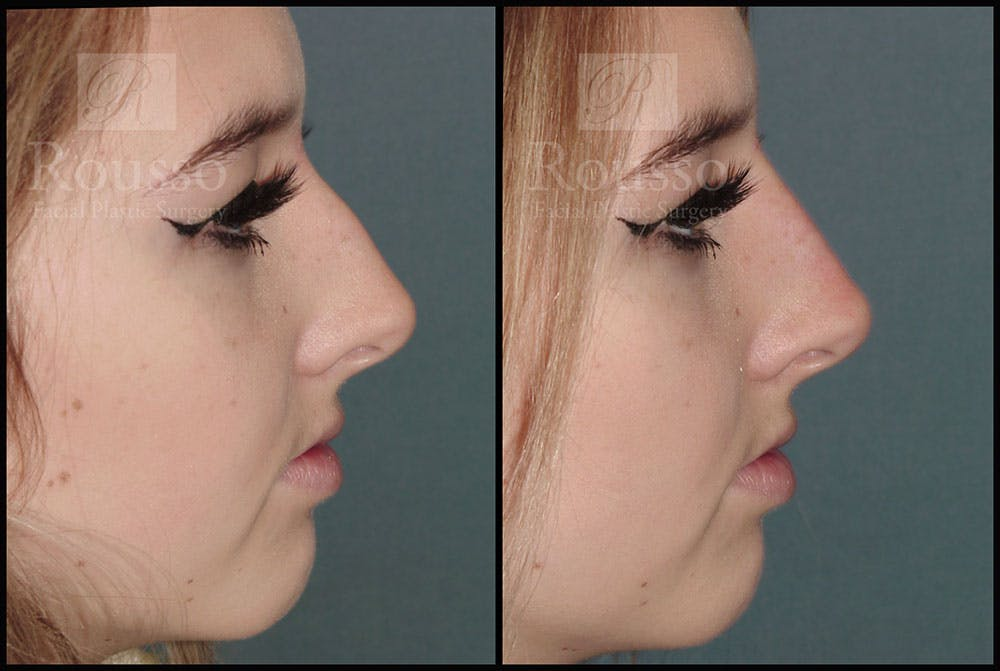 Non-Surgical Rhinoplasty Gallery - Patient 6364282 - Image 1