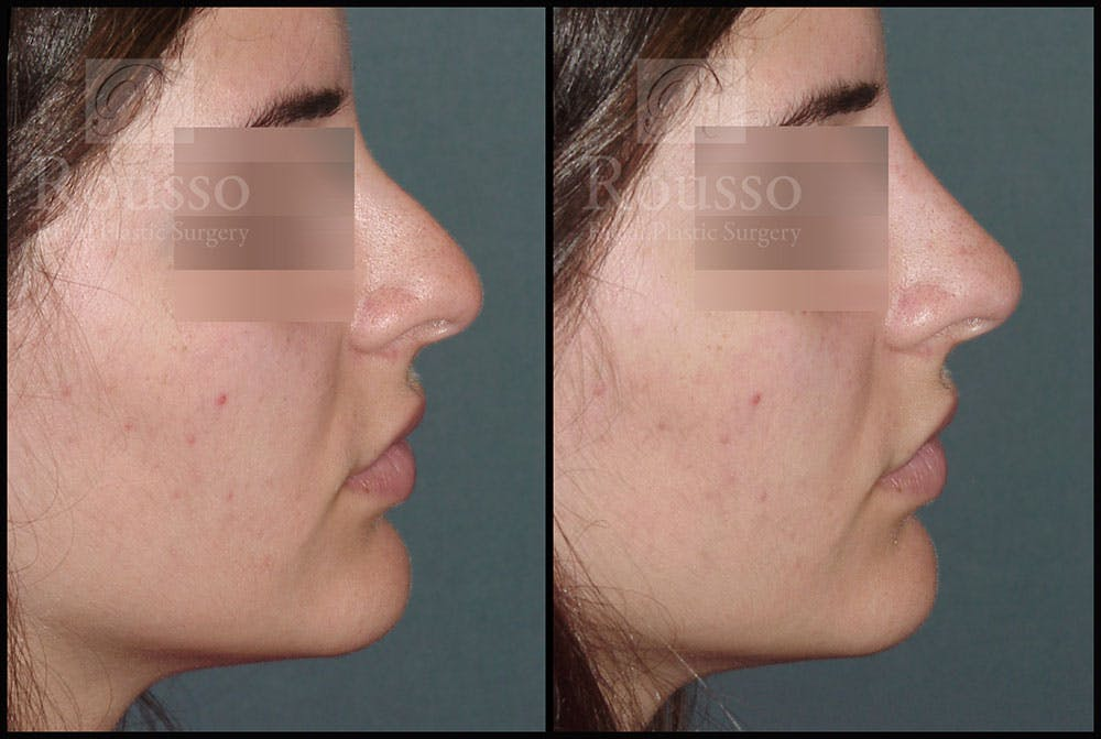 Non-Surgical Rhinoplasty Gallery - Patient 6364283 - Image 1
