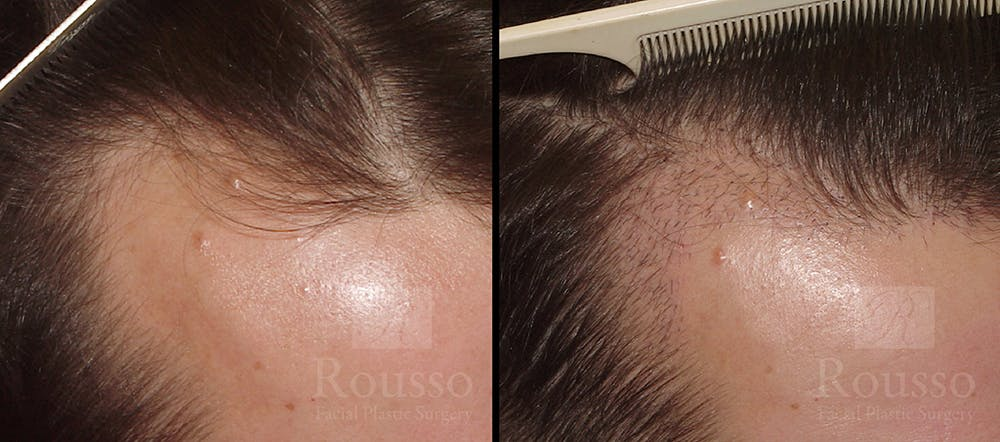 Hair Transplant Gallery - Patient 7300730 - Image 1