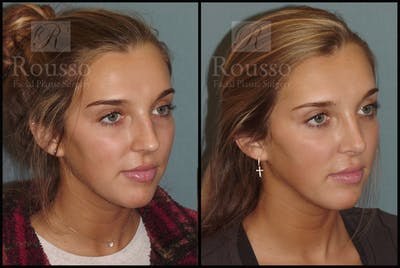 Rhinoplasty Gallery - Patient 7392509 - Image 1