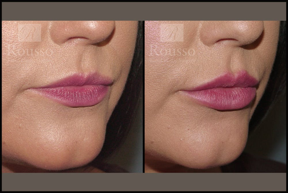 Fillers Gallery - Patient 7575889 - Image 1