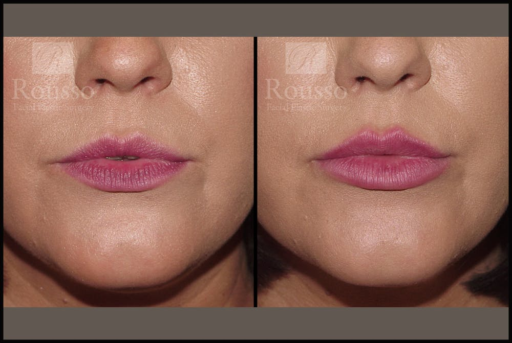 Fillers Gallery - Patient 7575889 - Image 2