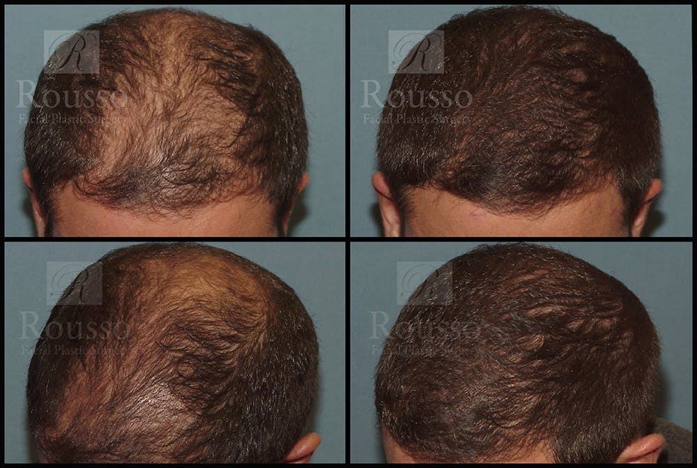 Hair Gallery - Patient 7809682 - Image 1