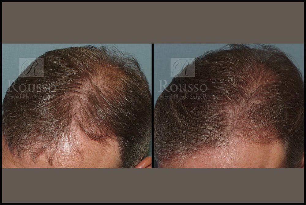Hair Gallery - Patient 7809683 - Image 1