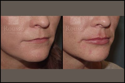 Fillers Gallery - Patient 9605871 - Image 1