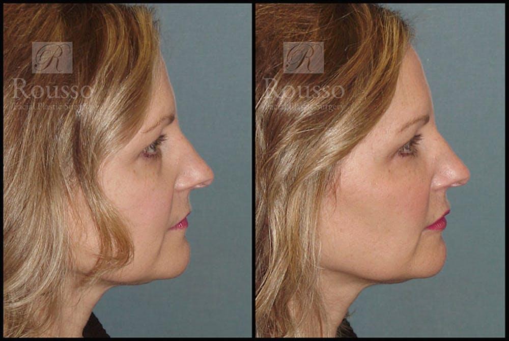 Liquid Facelift Gallery - Patient 9633094 - Image 3