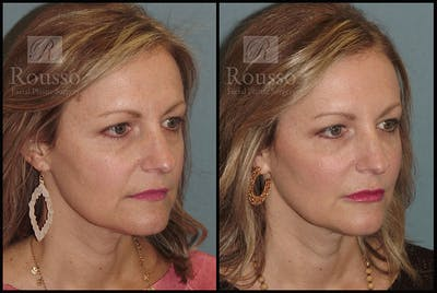 Liquid Facelift Gallery - Patient 9633094 - Image 1