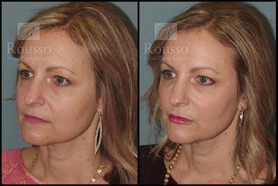Liquid Facelift Gallery - Patient 9633094 - Image 2