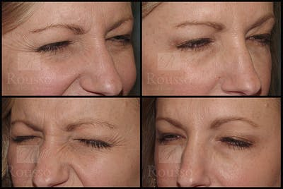 Fillers Gallery - Patient 9633106 - Image 2