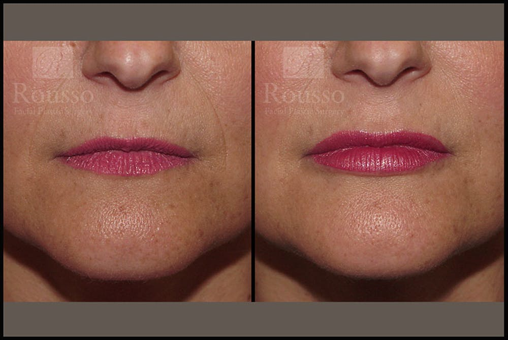 Fillers Gallery - Patient 9633107 - Image 1