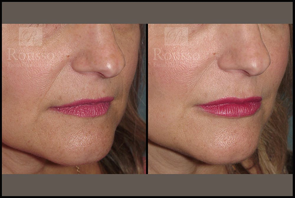 Fillers Gallery - Patient 9633107 - Image 2