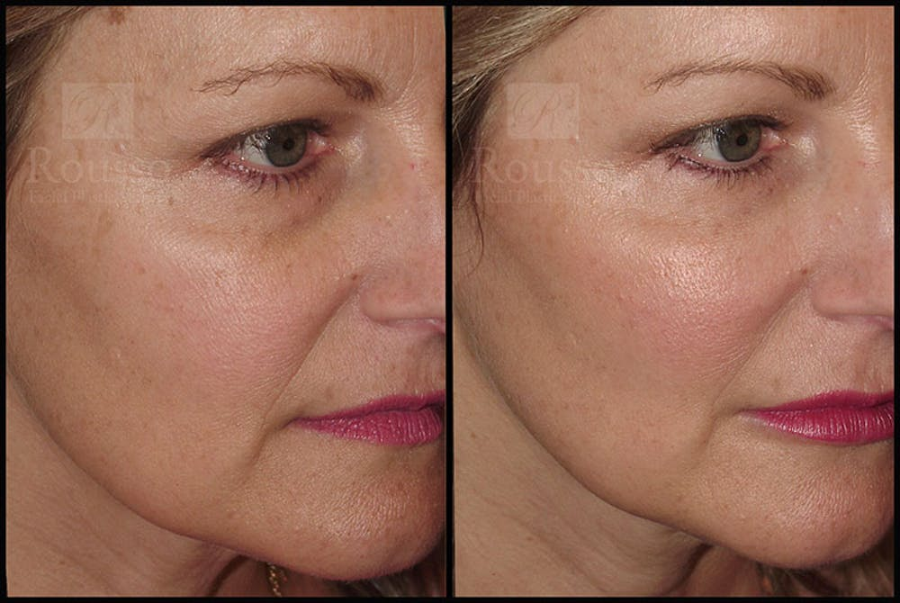 Fillers Gallery - Patient 9633108 - Image 1