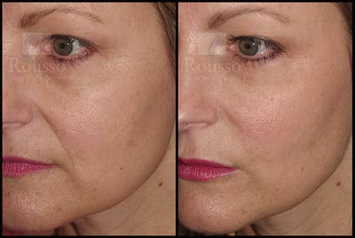 Fillers Gallery - Patient 9633108 - Image 2