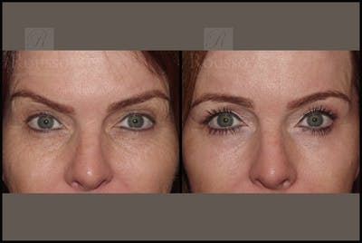 Blepharoplasty Gallery - Patient 10597772 - Image 1