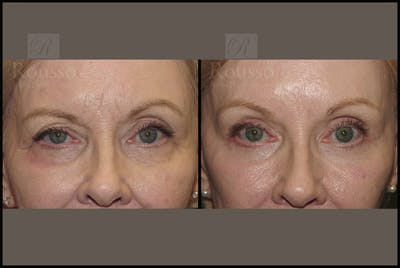 Blepharoplasty Gallery - Patient 10597773 - Image 1