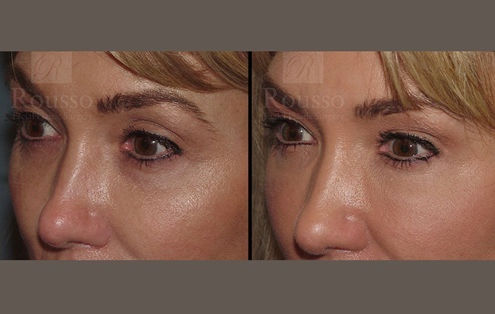 Fillers Gallery - Patient 10894412 - Image 1