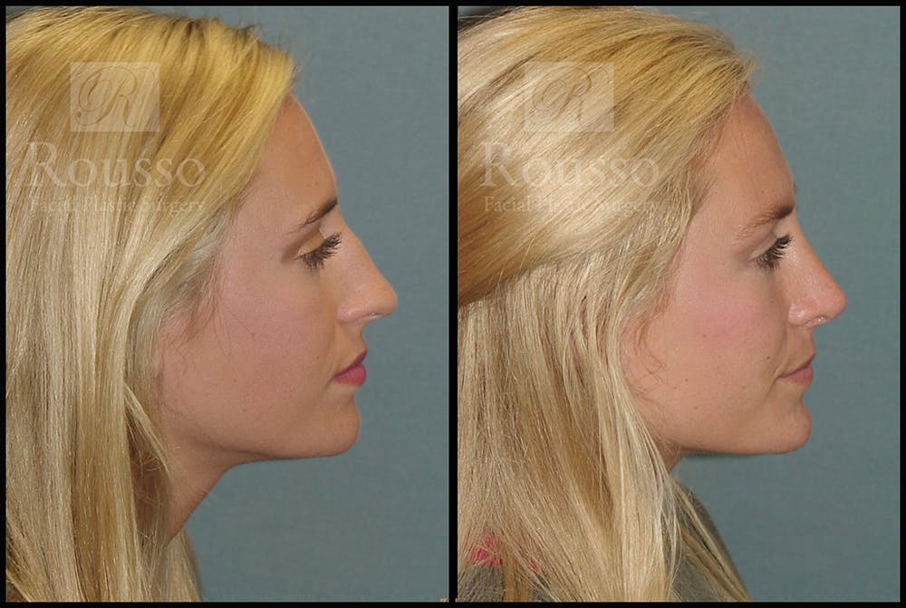 Rhinoplasty Gallery - Patient 17355878 - Image 3