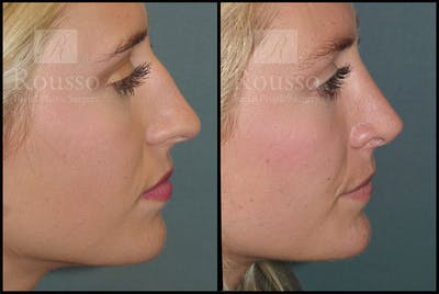 Rhinoplasty Gallery - Patient 17355878 - Image 4