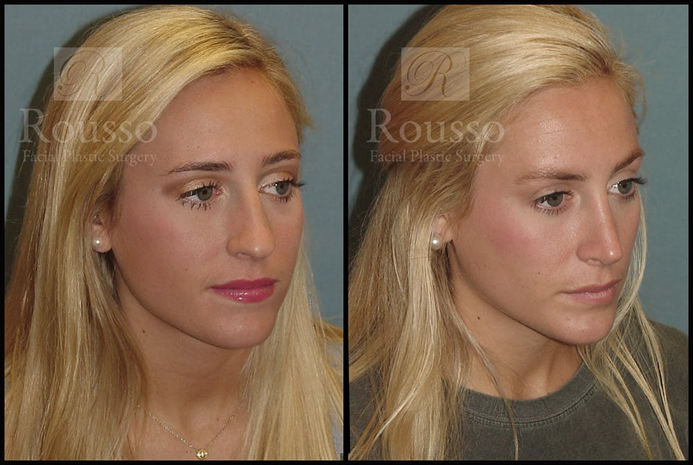 Rhinoplasty Gallery - Patient 17355878 - Image 1