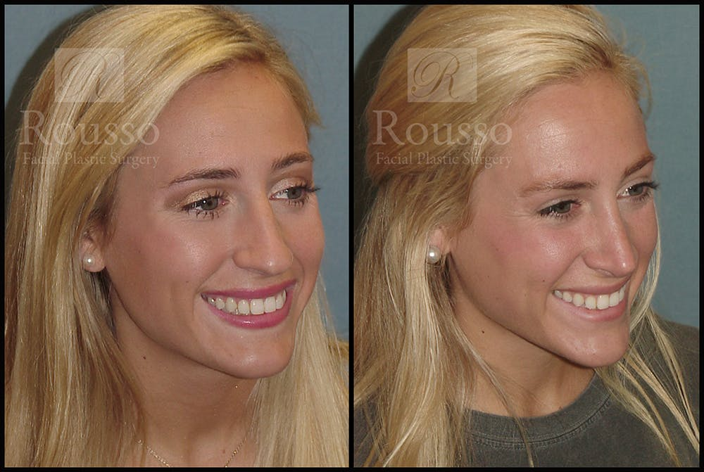 Rhinoplasty Gallery - Patient 17355878 - Image 2
