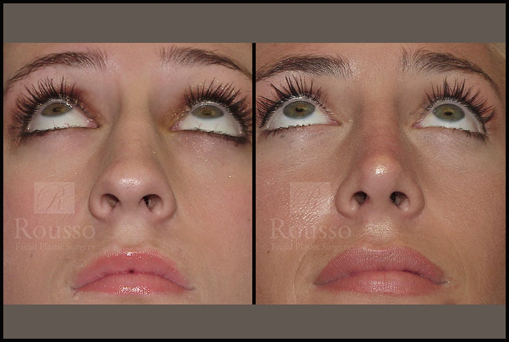 Rhinoplasty Gallery - Patient 17355878 - Image 5
