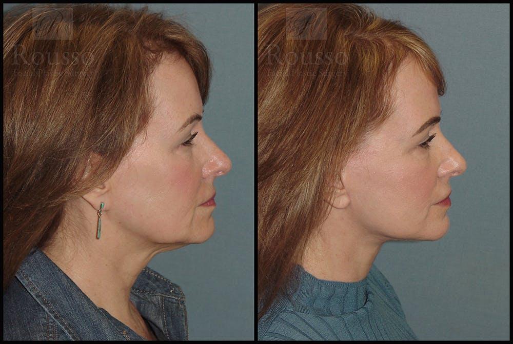 Facelift Gallery - Patient 18906429 - Image 1